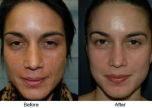 VI Chemical Peel Midtown Atlanta